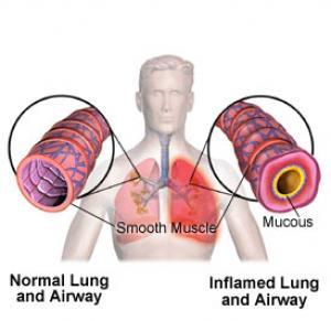 Άσθμα στην Παιδική Ηλικία