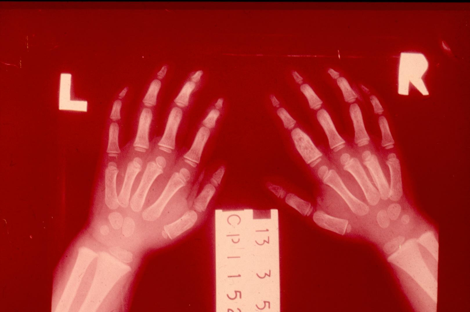 Κλινική περίπτωση 3: Η σημαντικότητα του ιστορικού του ασθενούς!!